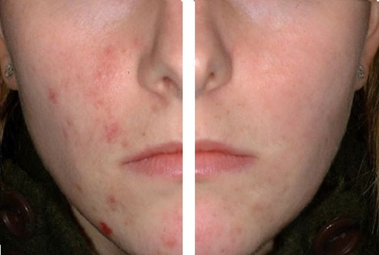 I will remove the acne, skin moles or freckles from your photo.