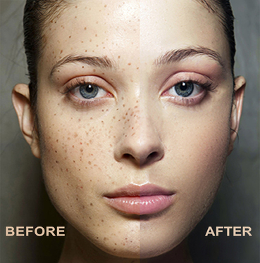 Remove Spot And Pimples On Your Photo Within 24 Hours