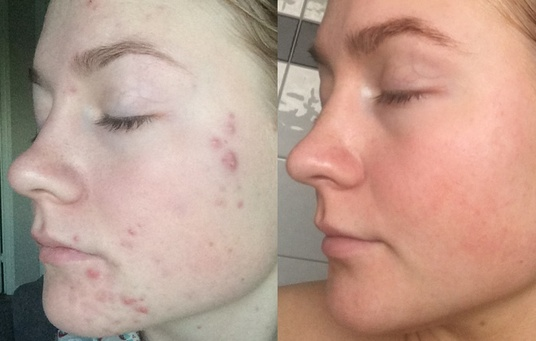 I will Smooth your skin shown in a photo you have supplied and remove any marks, blemishes or pim