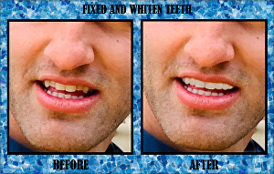 I will fix and whiten your teeth using photoshop