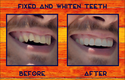 fix and whiten your teeth using photoshop